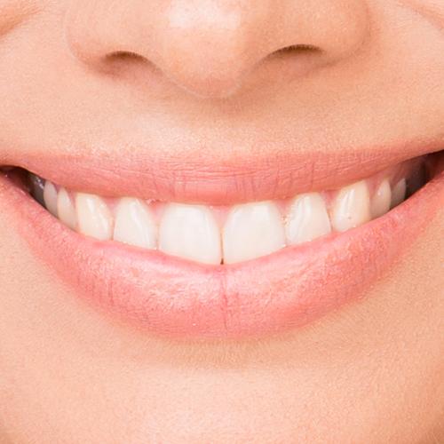 servizi protesi dentaria